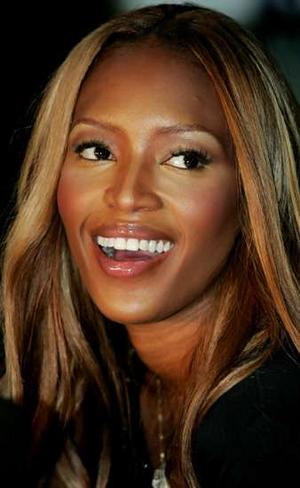Naomi Campbell Plastic Surgery Before And After photo